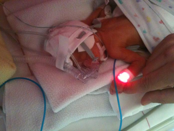 Meitiņa piedzima 25. grūtniecības nedēļā